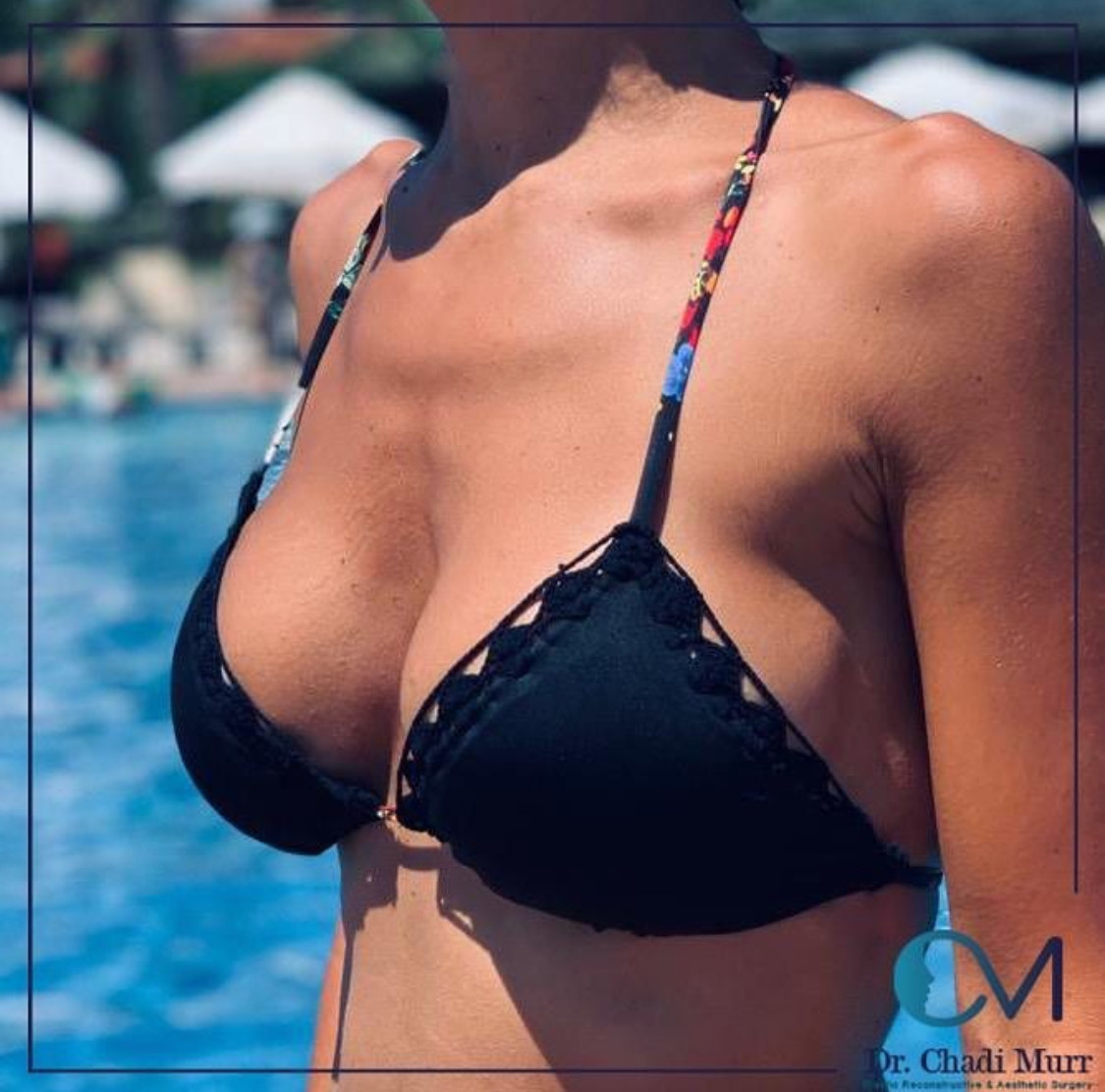 BreastAugmentation1.jpg