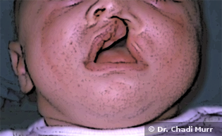 Cleft Lip and Cleft Palate